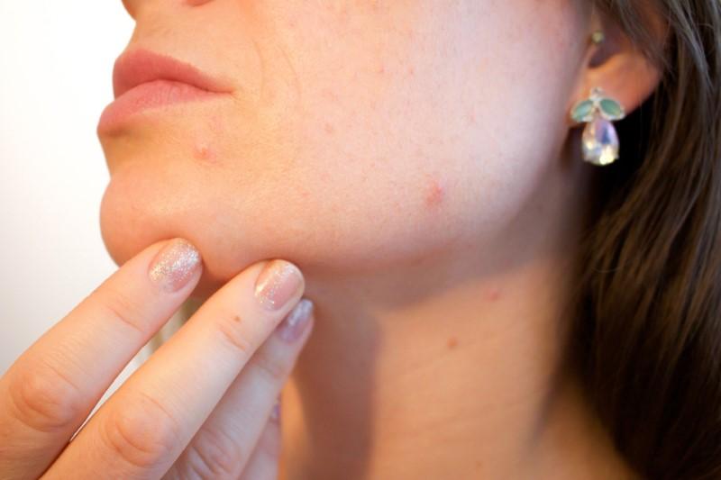 Péče o pleť kvůli akné